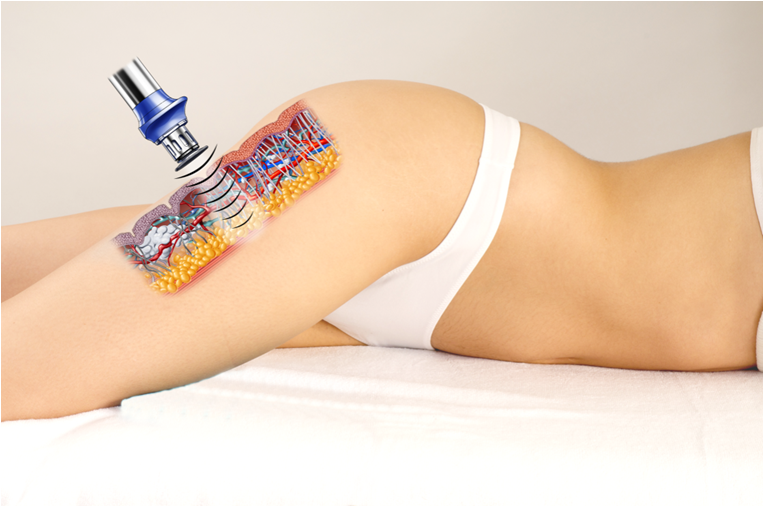 cavitacion ultrasonica
