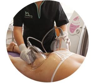 Vacuumterapia ¿Qué es y cómo funciona?